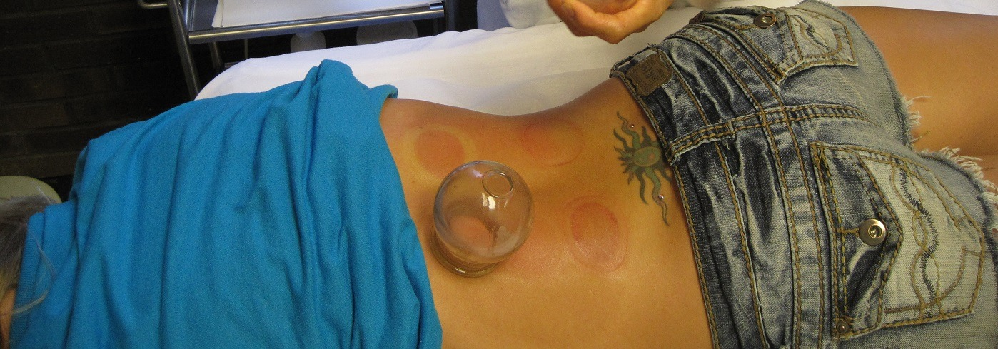 Cupping at AIAM