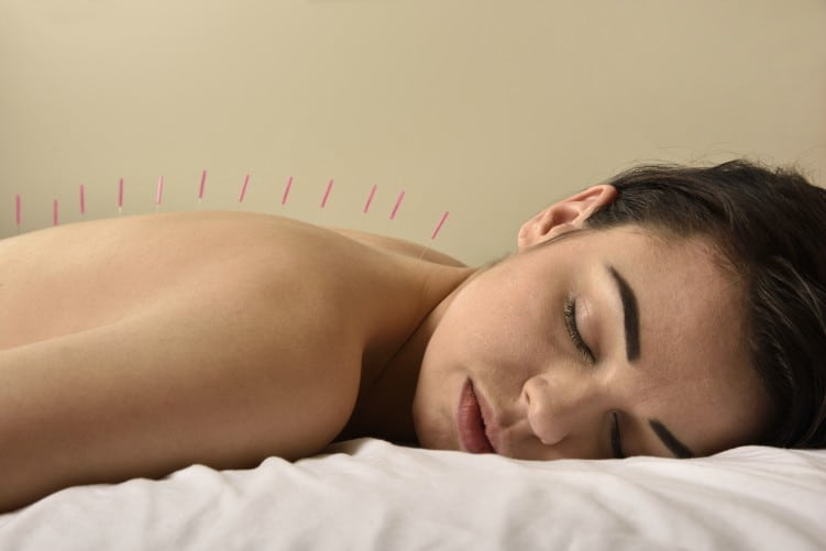 acupuncture woman